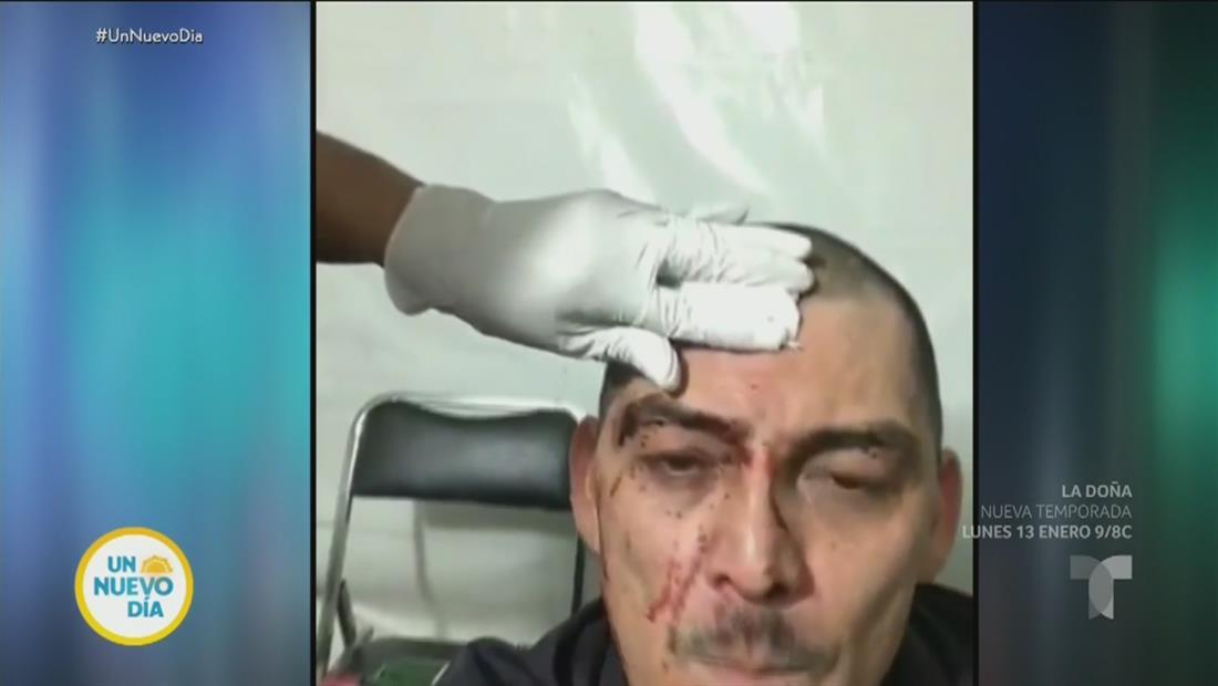 José Manuel Figueroa tiene aparatosa caída que pudo ser fatal