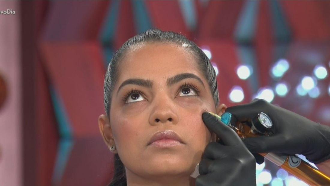 Reduce tus ojeras con un nuevo tratamiento estético, sin cirugías