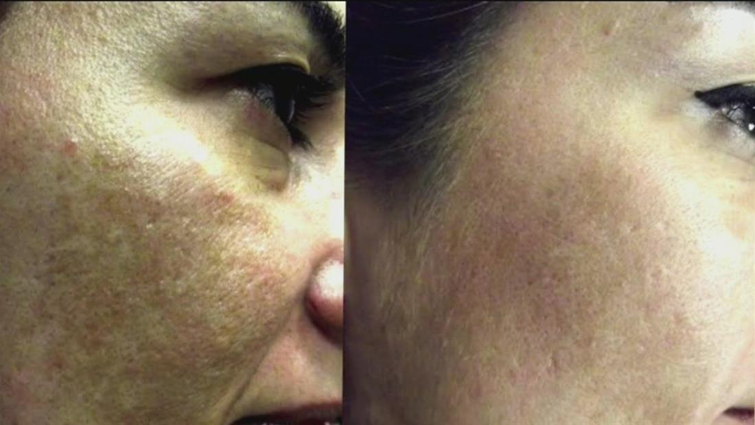 La luz de tu celular podría ser la razón principal de manchas en la piel
