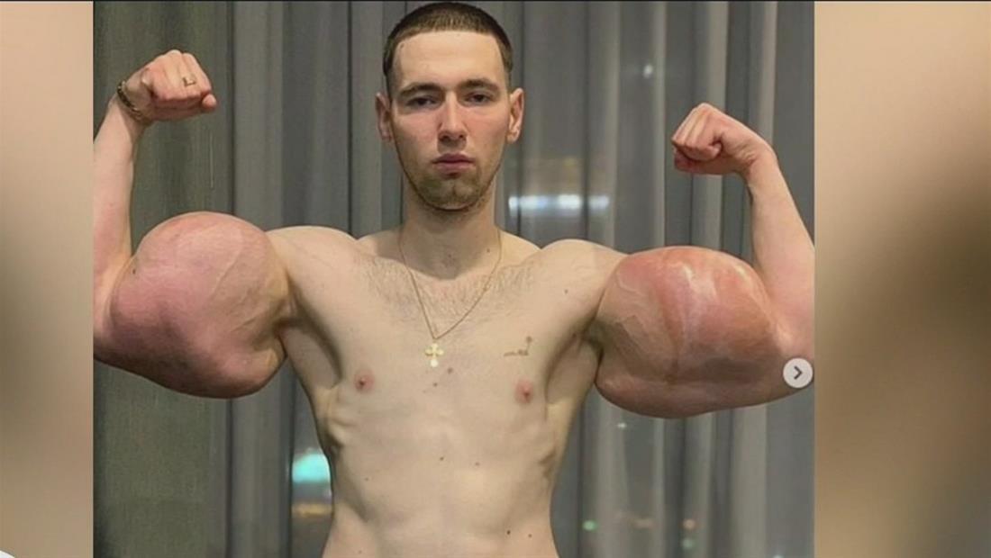Extraen tres libras de músculo muerto de los brazos del Popeye ruso