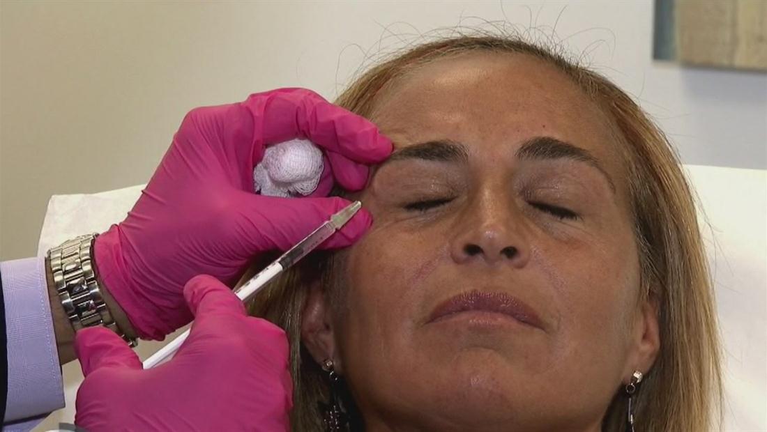 Descubre la nueva tendencia para las arrugas y alternativa para el botox