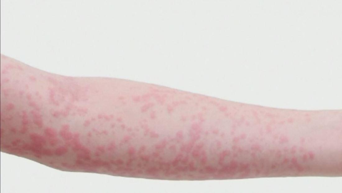 Aprende a detectar los síntomas del sarampión para evitar contagiarte
